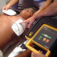 Desfibriladores cardíacos podem reverter fibrilação auricular ou ventricular. Foto: Shutterstock
